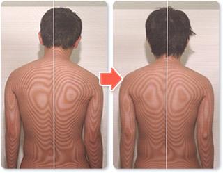 背骨の歪みと施術後の状態02