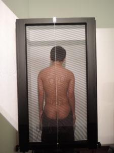 千葉県で自律神経失調症と診断された高校生が通う整体での姿勢の検査