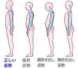 千葉県で子供の頭痛を姿勢から改善させる整体が問題としている姿勢の図