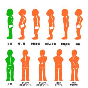 子供の姿勢パターン